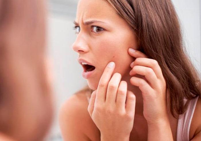 Tratamiento pieles acneicas - Centro de Belleza Elixir, Toledo